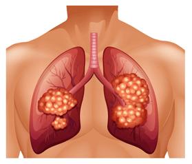 Lung Health & Massage