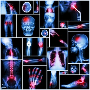 How These Simple Steps Can Help You with Inflammation in Arthritis 1